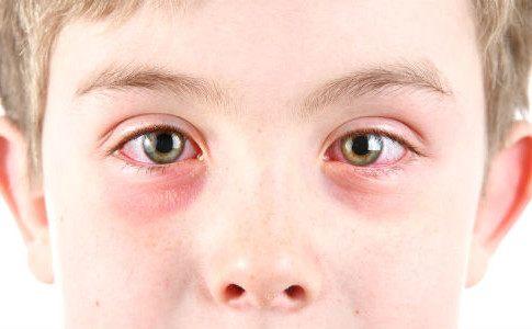 Allergien vermeiden