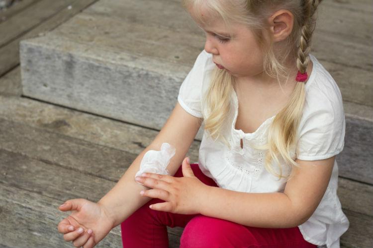 Kleines Mädchen reibt sich eine juckende Hauptpartie am Arm mit Creme ein