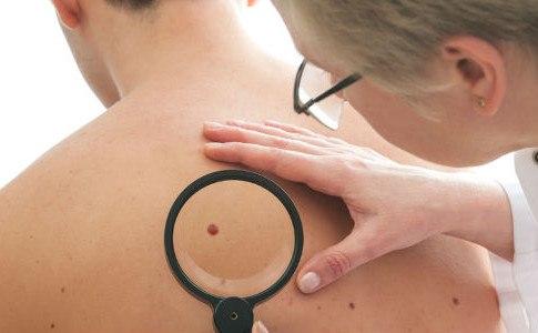 Hautkrebs erkennen