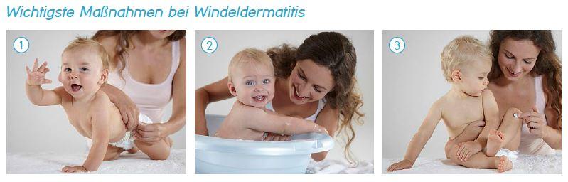 Maßnahmen bei Windeldermatitis
