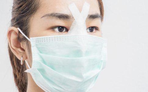 Nasenkorrektur bei Minderjähringen